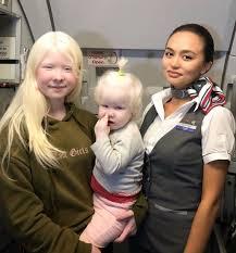Deux sœurs albinos avec 12 ans de différence