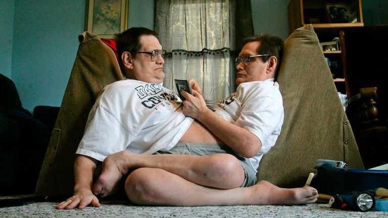Les jumeaux siamois les plus âgés